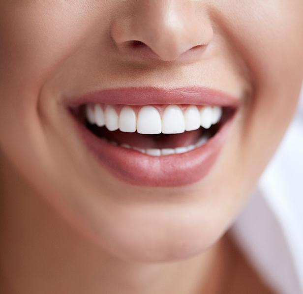 Faccette dentali Roma