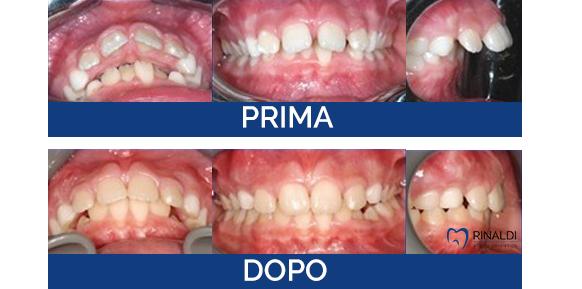 Caso clinico ortodonzia 3